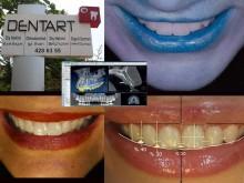 Dentart Diş Kliniği