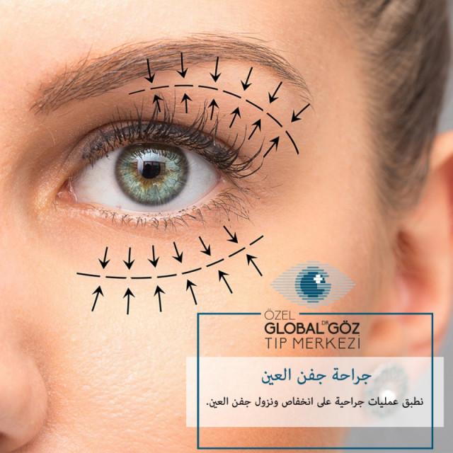 Özel Global Dr. Göz Tıp Merkezi