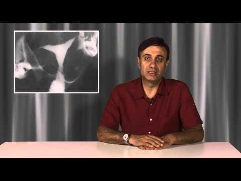 İlaçlı rahim filmi, Histerosalpingografi (HSG) hangi durumlarda gerekir?