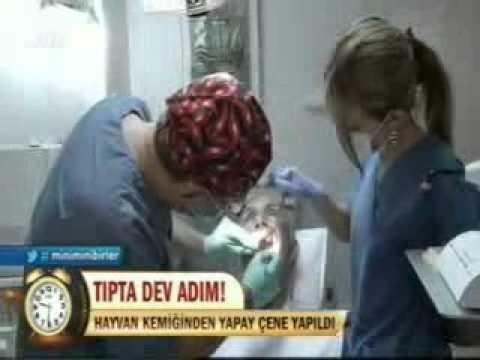 Tanfer Klinik FOX HABER 10_09_2012.DR.NİHAT TANFER