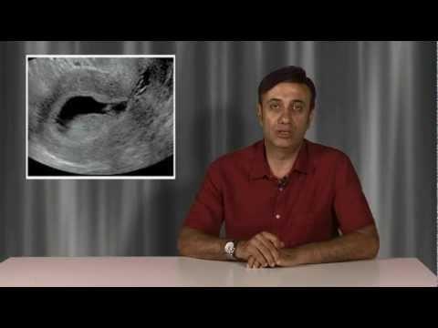 Sulu ultrason, SİS, salin infüzyon sonografi ne amaçla yapılır?