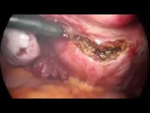 Laparoskopik Histerektomi (Kapalı Rahim Alınması) Ameliyatı