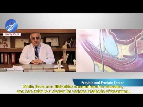Prof.  Dr.  Ümit Salih Şimşek Prostat
